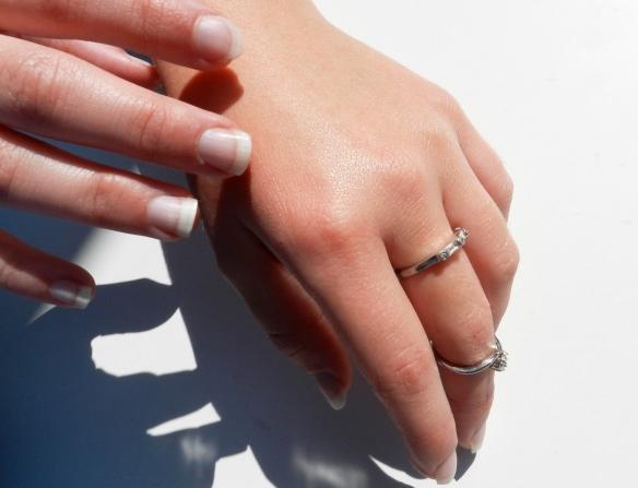 Manos exfoliadas Exfoliated hands